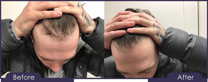 Hair Transplant Glasgow